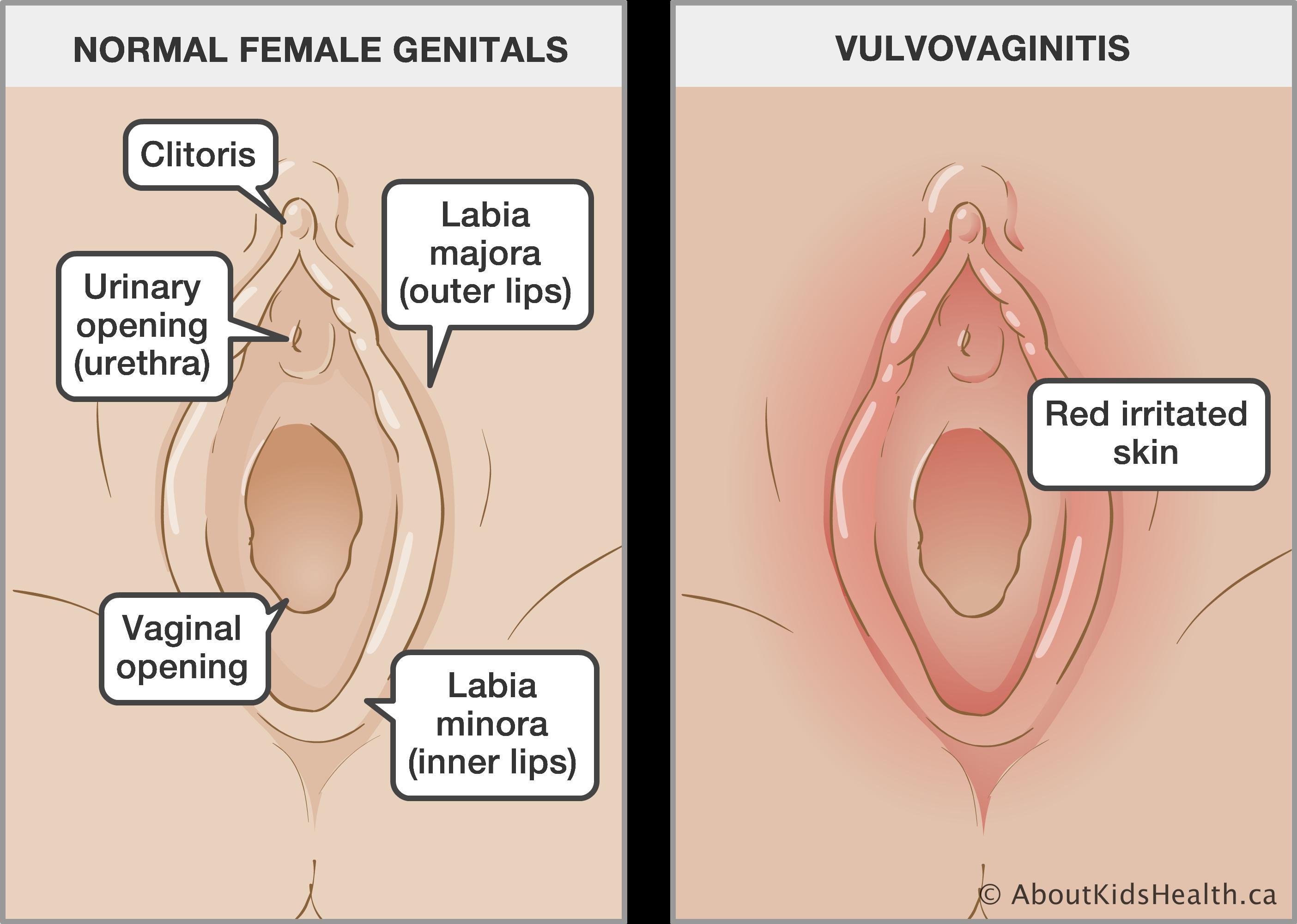 Ultra vagina hole pics