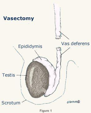 best of Sperm Post production vasectomy