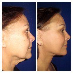 Astro reccomend Center for facial cosmetic