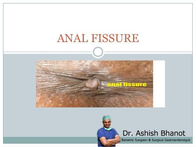 D-Day reccomend Anal fissure treat