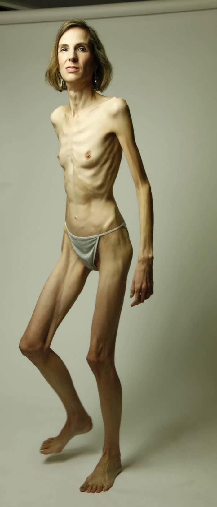 Extrem dünnes Mädchen nackt, Yamine porn