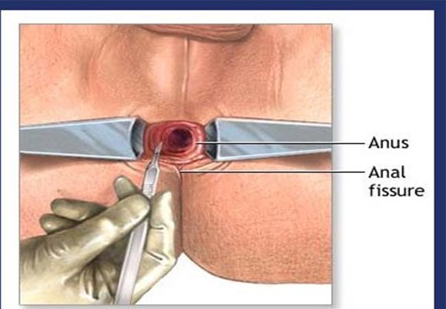 Anal fissure treat