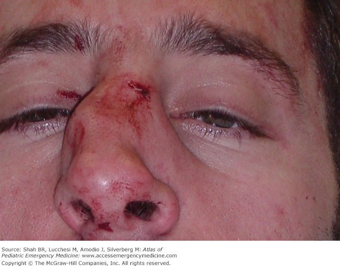 Bullseye reccomend Laboratory abnormalities after a facial fracture