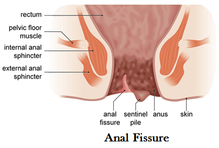 best of Treat Anal fissure