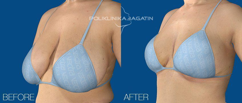 Of breast reduction surgery