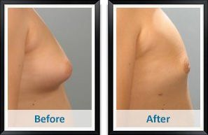 Slobber-knocker reccomend Of breast reduction surgery