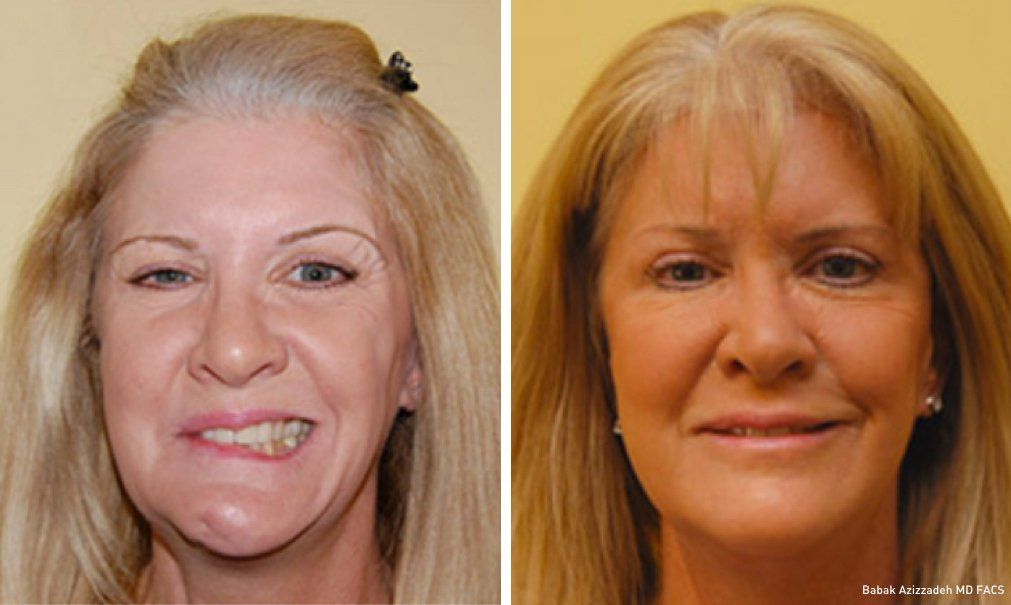 best of Reconstruction Microsurgical facial