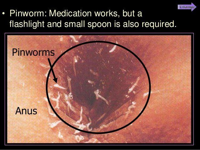 Pictures of pinworm eggs on anus
