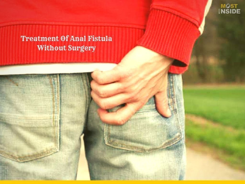WMD reccomend Home remedies for anal abcess