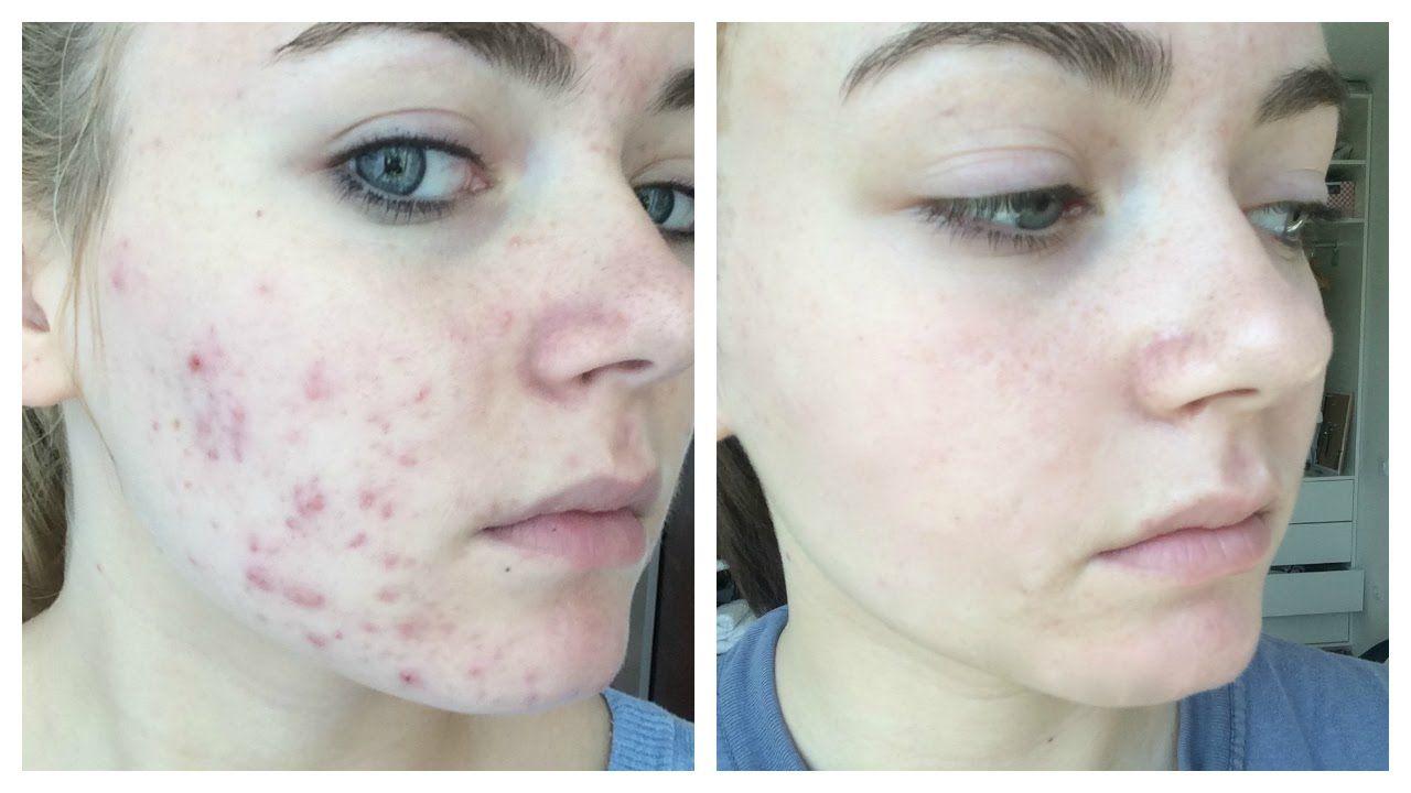 Acne Girl Porn naturally clear facial acne - 34 new sex pics.