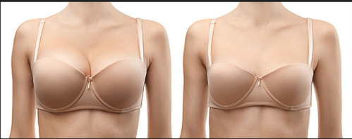 best of Reduction surgery breast Of